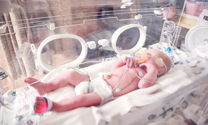 hernia umbilical bebe